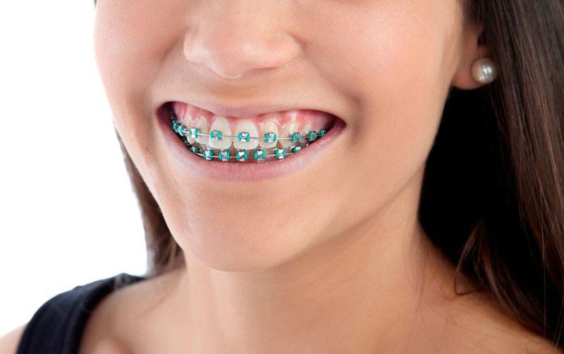aparat-ortodontyczny