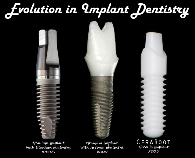 rodzaje implantow
